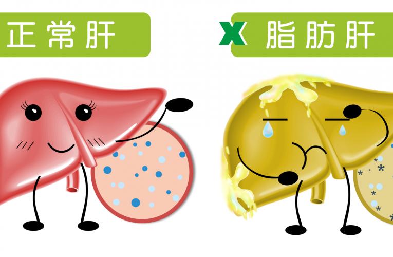 [新聞] 腹部超音波時發現黑影 可能是肝脂肪非腫瘤